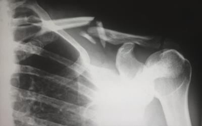 Stufen von Körperverletzung - Welche Tatbestände erfordern welche Strafen? - BERATUNG.DE